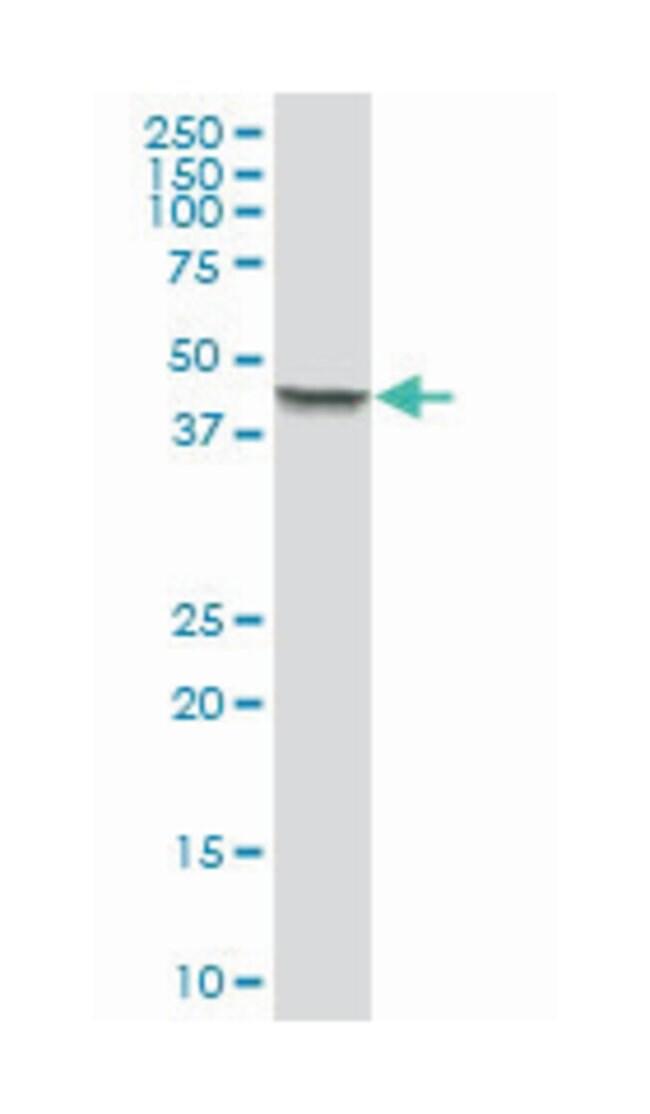 keratin 18, Mouse, Polyclonal Antibody, Abnova 50µL; Unlabeled