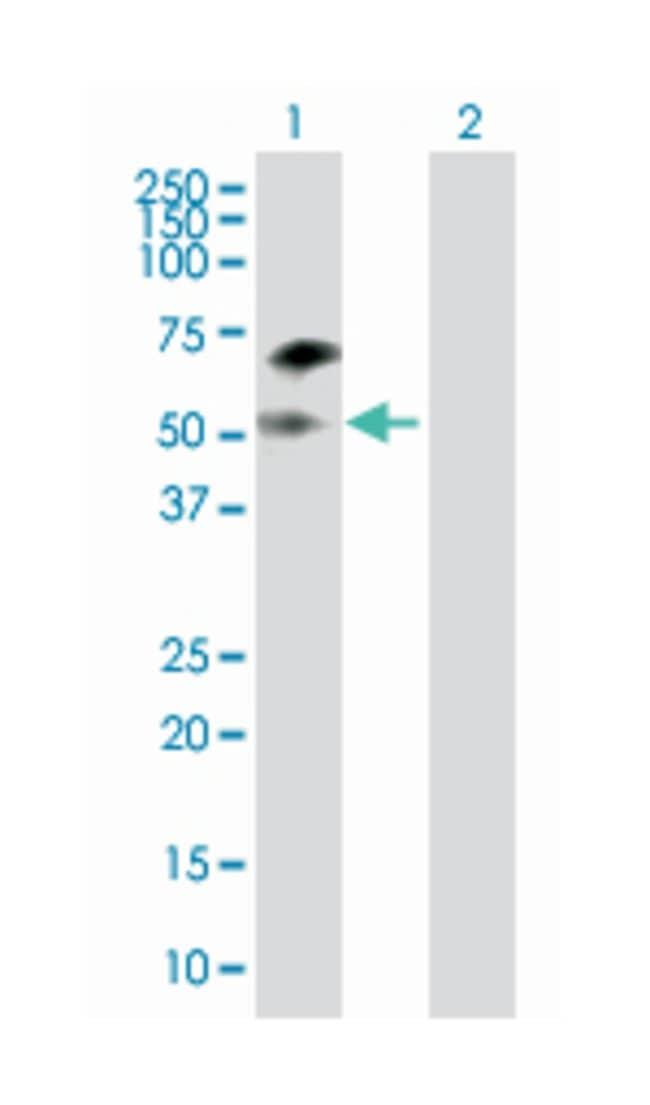 disabled homolog 1 (Drosophila), Mouse, Polyclonal Antibody, Abnova 50µL;