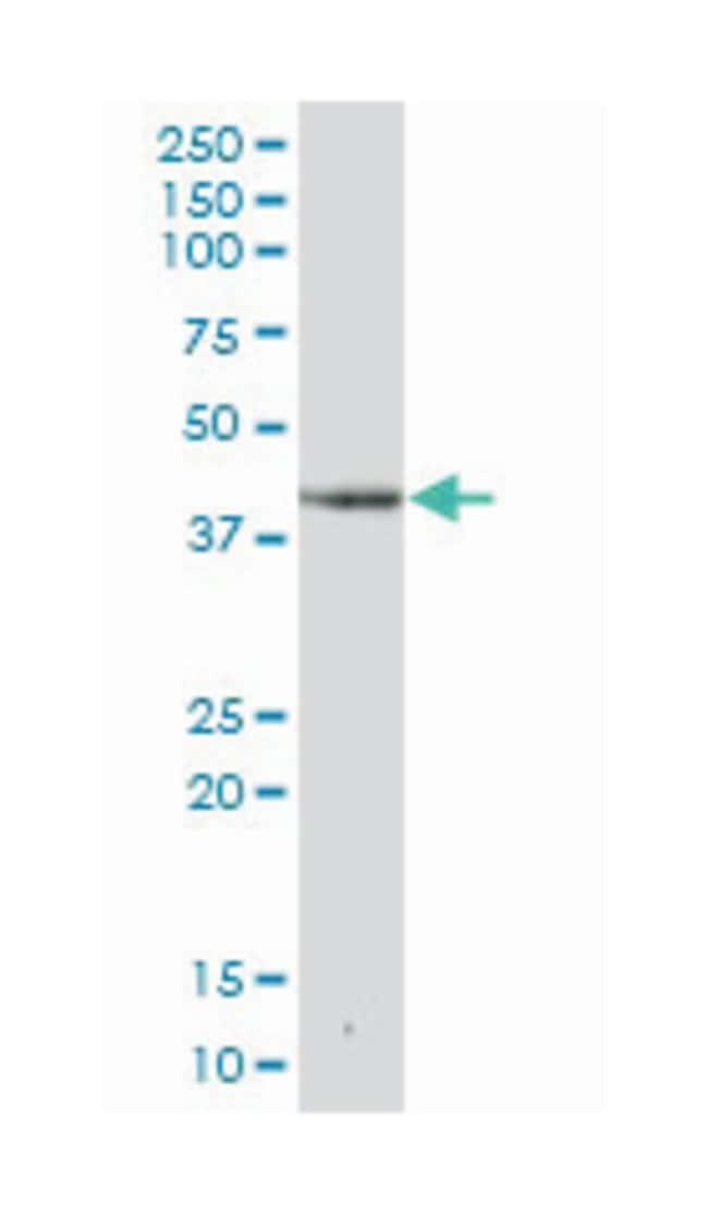deoxyhypusine synthase, Mouse, Polyclonal Antibody, Abnova 50µL; Unlabeled