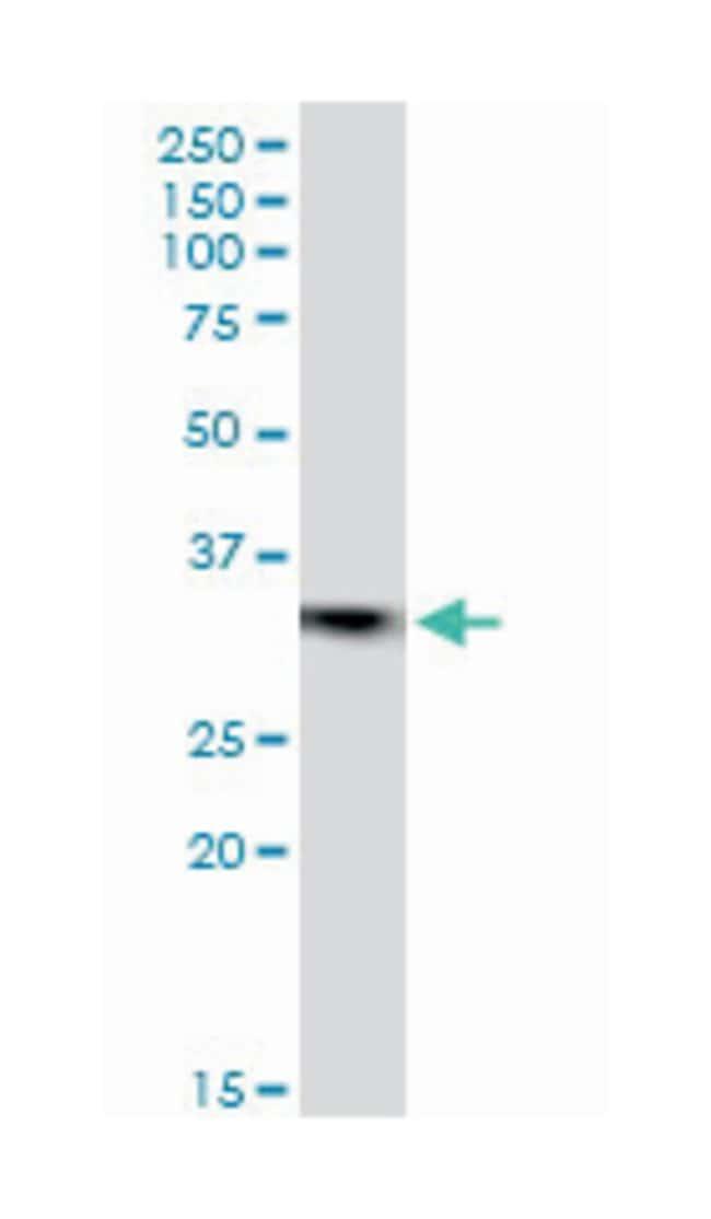 emerin, Mouse, Polyclonal Antibody, Abnova 50µL; Unlabeled
