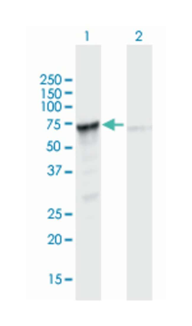 PGM3, Mouse, Polyclonal Antibody, Abnova 50µL; Unlabeled