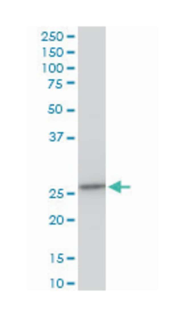 chromosome 21 open reading frame 33, Mouse, Polyclonal Antibody, Abnova