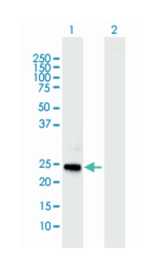 coagulation factor VIII, procoagulant component, Mouse, Polyclonal Antibody,