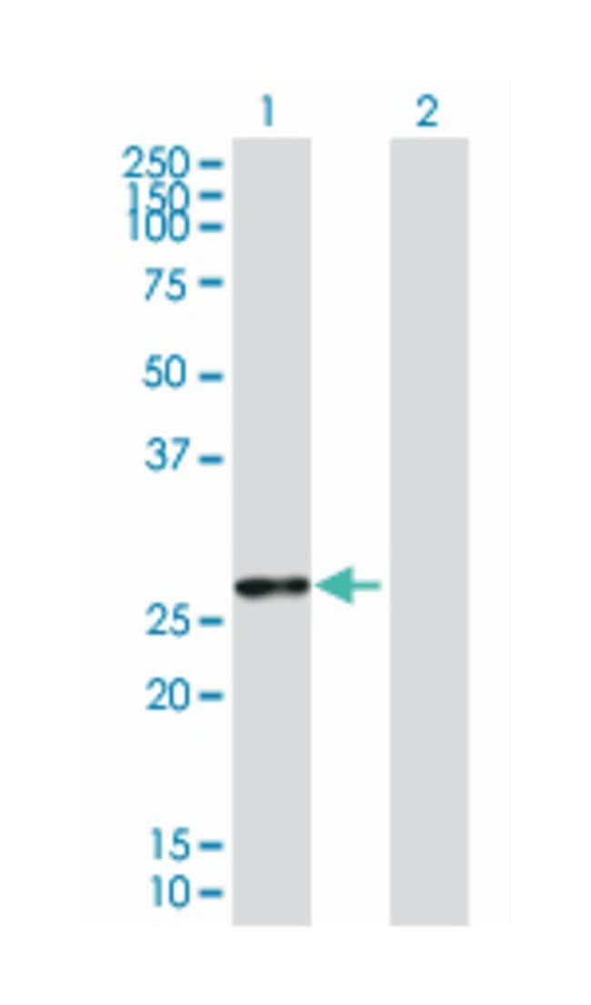 gap junction protein, beta 5, 31.1kDa (B01), Mouse anti-Human, Polyclonal