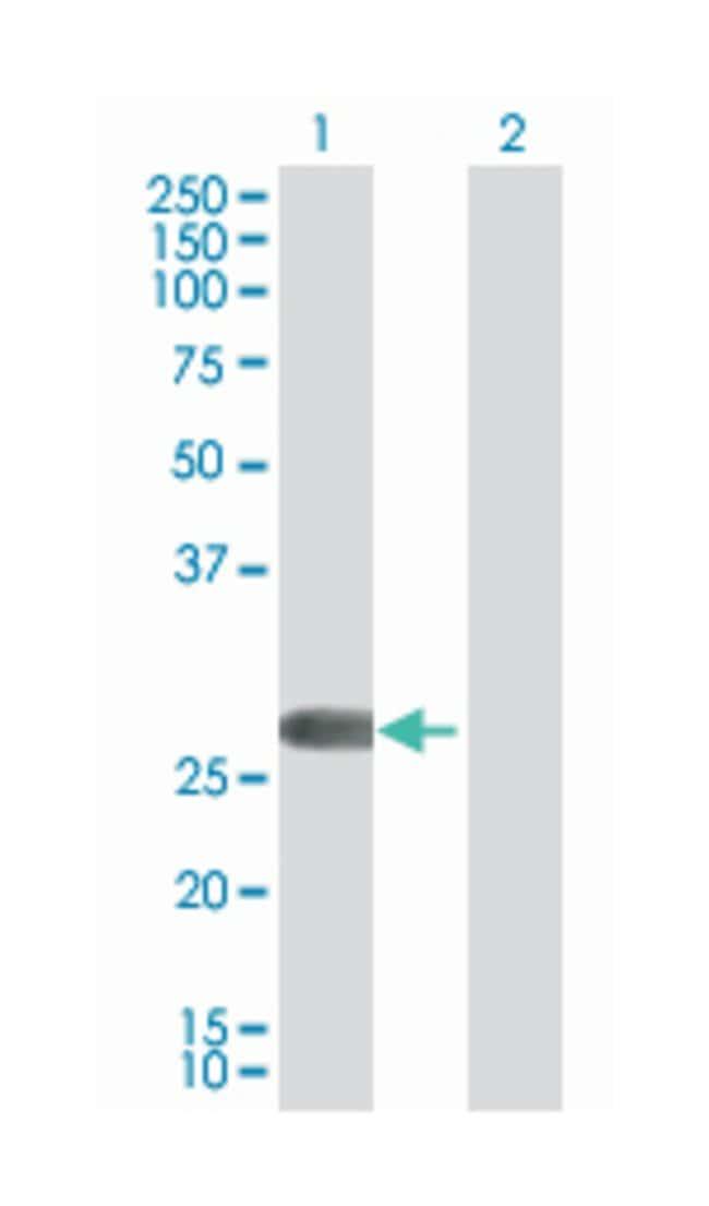 four and a half LIM domains 2, Mouse, Polyclonal Antibody, Abnova 50µL;