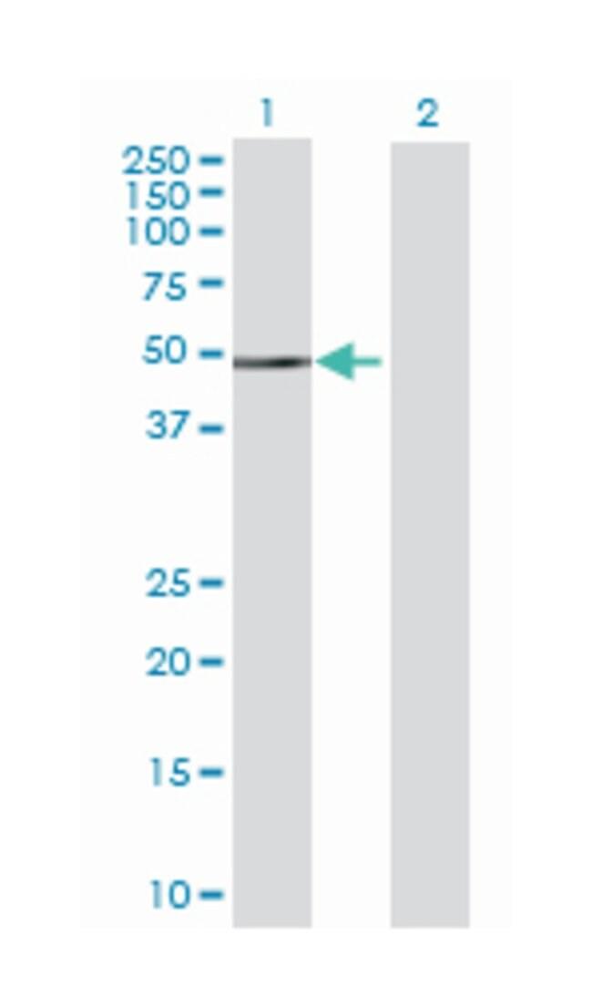 fyn-related kinase, Mouse, Polyclonal Antibody, Abnova 50µL; Unlabeled