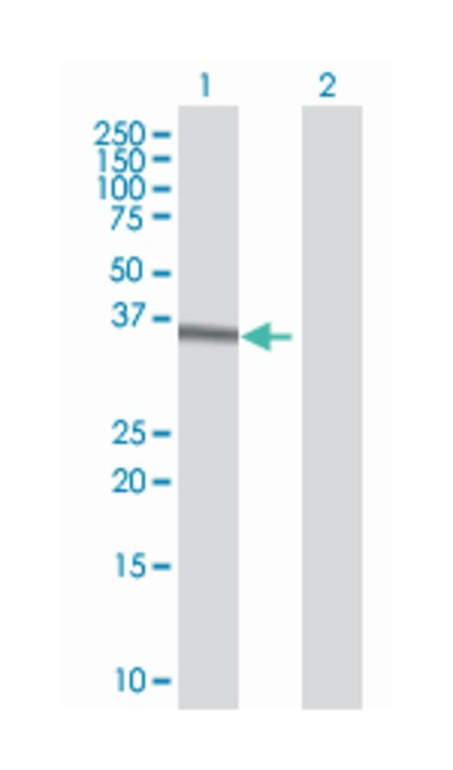 homeobox C4, Mouse, Polyclonal Antibody, Abnova 50µL; Unlabeled