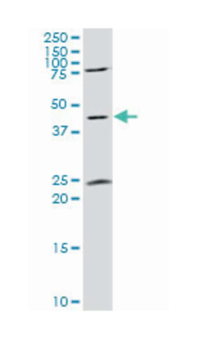 guanine nucleotide binding protein (G protein), alpha activating activity