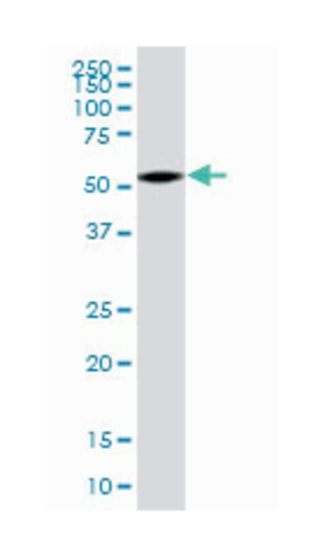 G protein pathway suppressor 1, Mouse, Polyclonal Antibody, Abnova 50µL;