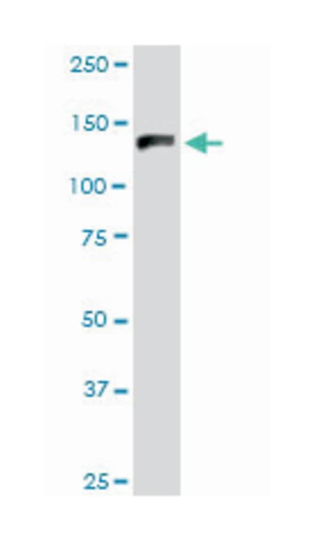 GTF2I, Mouse, Polyclonal Antibody, Abnova 50µL; Unlabeled