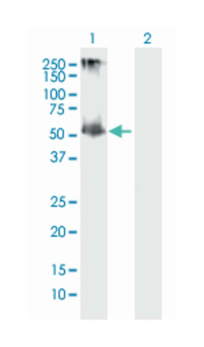 interleukin 13 receptor, alpha 2, Mouse, Polyclonal Antibody, Abnova 50µL;