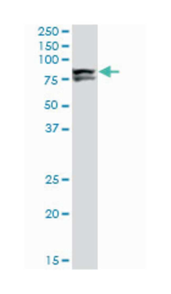 LIMK1, Mouse, Clone: 1A8, Abnova 200μL; Unlabeled:Antibodies