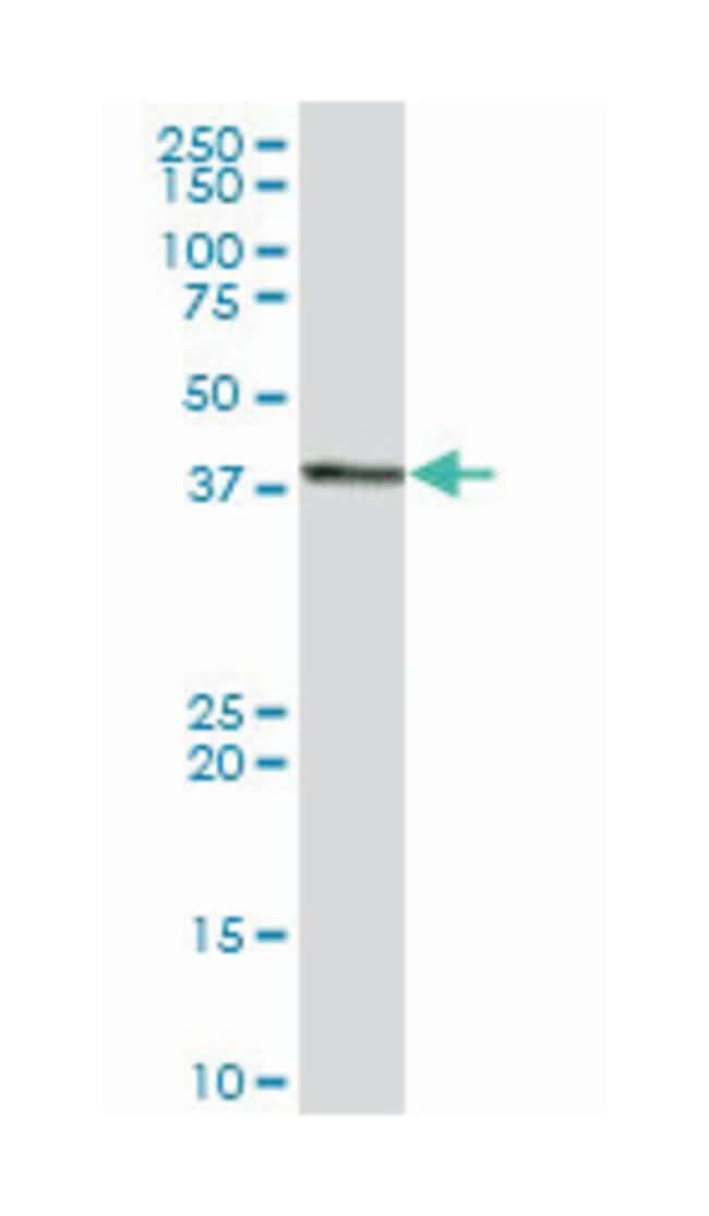 general transcription factor IIH, polypeptide 2, 44kDa, Mouse, Polyclonal