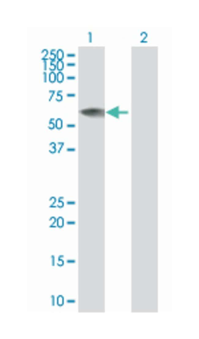regulator of G-protein signaling 7, Mouse, Polyclonal Antibody, Abnova
