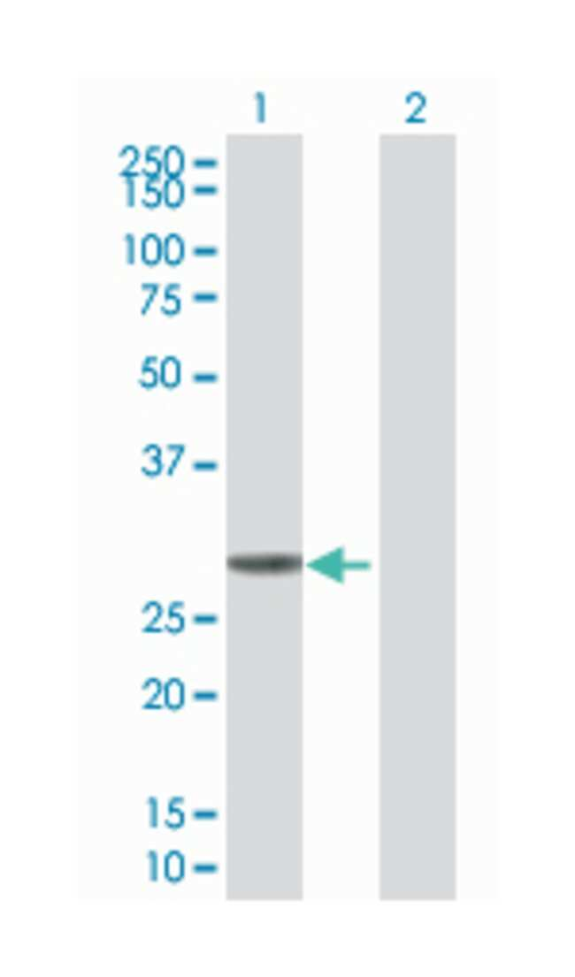 ketohexokinase (fructokinase), Mouse, Polyclonal Antibody, Abnova 50µL;