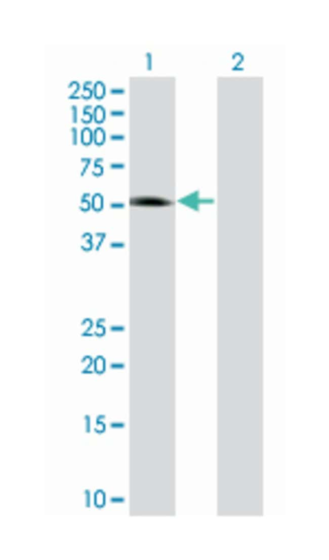 neurogenic differentiation 1, Mouse, Polyclonal Antibody, Abnova 50µL;