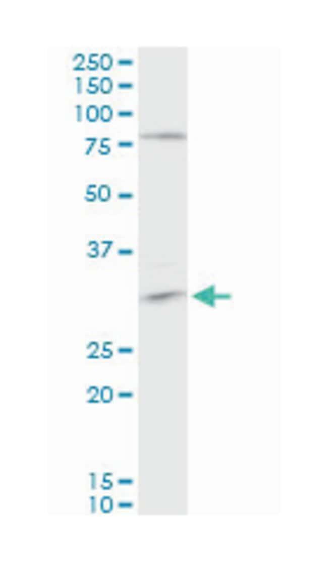 tropomyosin 3, Mouse, Polyclonal Antibody, Abnova 50µL; Unlabeled