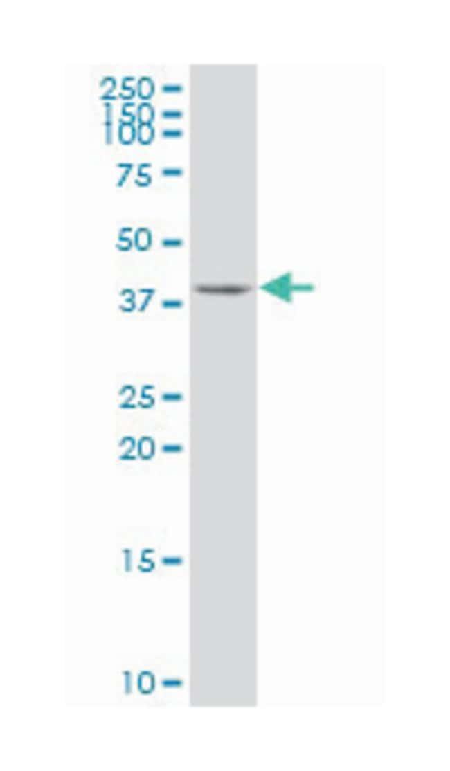 tropomodulin 1, Mouse, Polyclonal Antibody, Abnova 50µL; Unlabeled