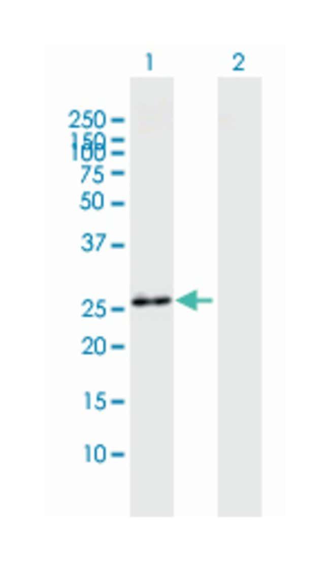 fibroblast growth factor 23, Mouse, Polyclonal Antibody, Abnova 50µL;