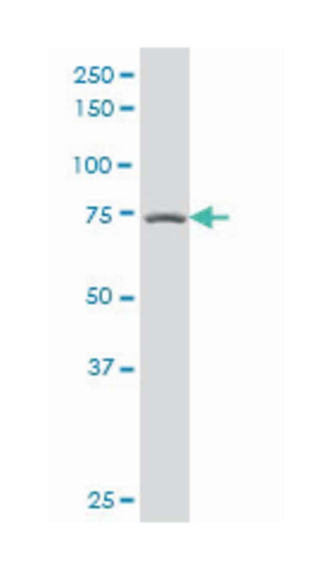 protein kinase C, beta, Mouse, Polyclonal Antibody, Abnova 50µL; Unlabeled