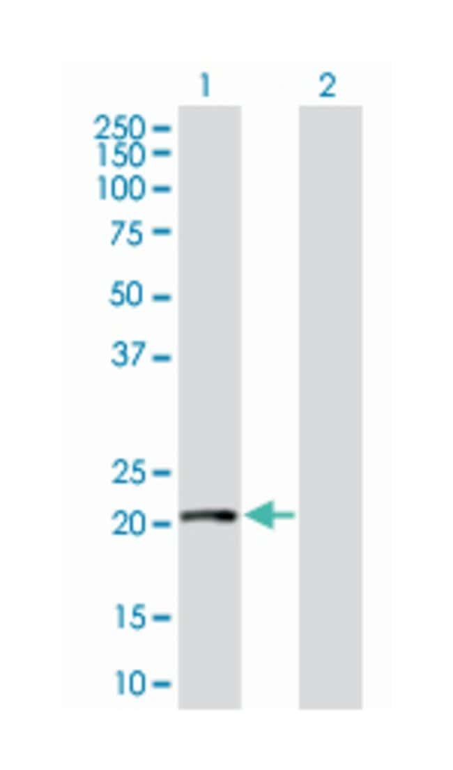regulator of G-protein signaling 1 (B02), Mouse anti-Human, Polyclonal