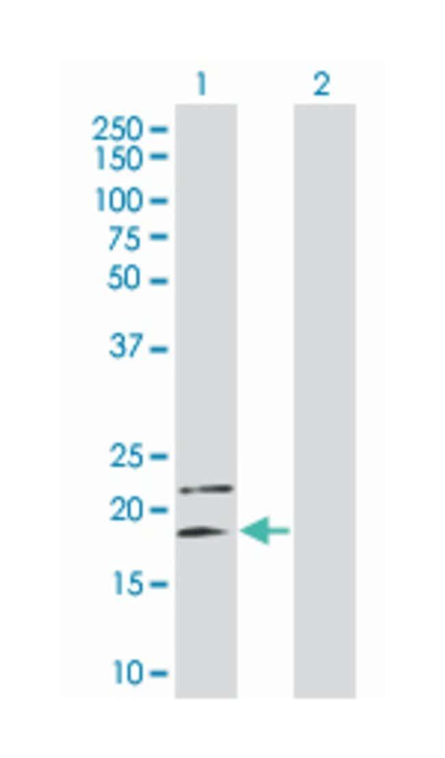 interleukin 4, Mouse, Polyclonal Antibody, Abnova 50µL; Unlabeled