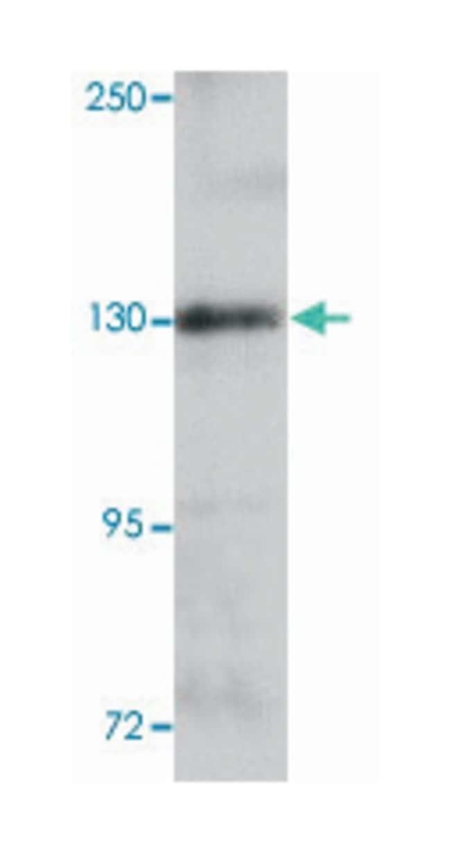 ZEB1, Rabbit, Polyclonal Antibody, Abnova 100µg; Unlabeled:Life Sciences