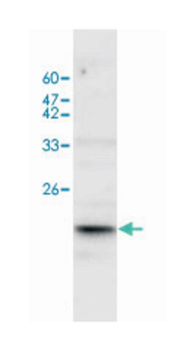 IL17A Rabbit anti-Human, Polyclonal Antibody, Abnova 100µL; Unlabeled:Life