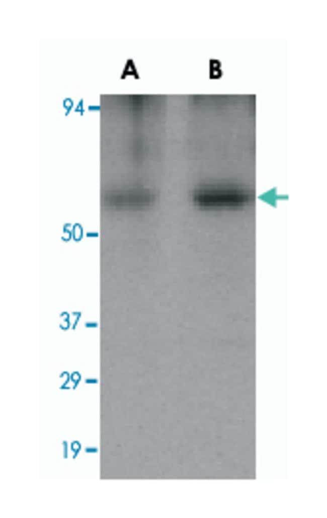 CLU, Rabbit, Polyclonal Antibody, Abnova 100µg; Unlabeled:Life Sciences