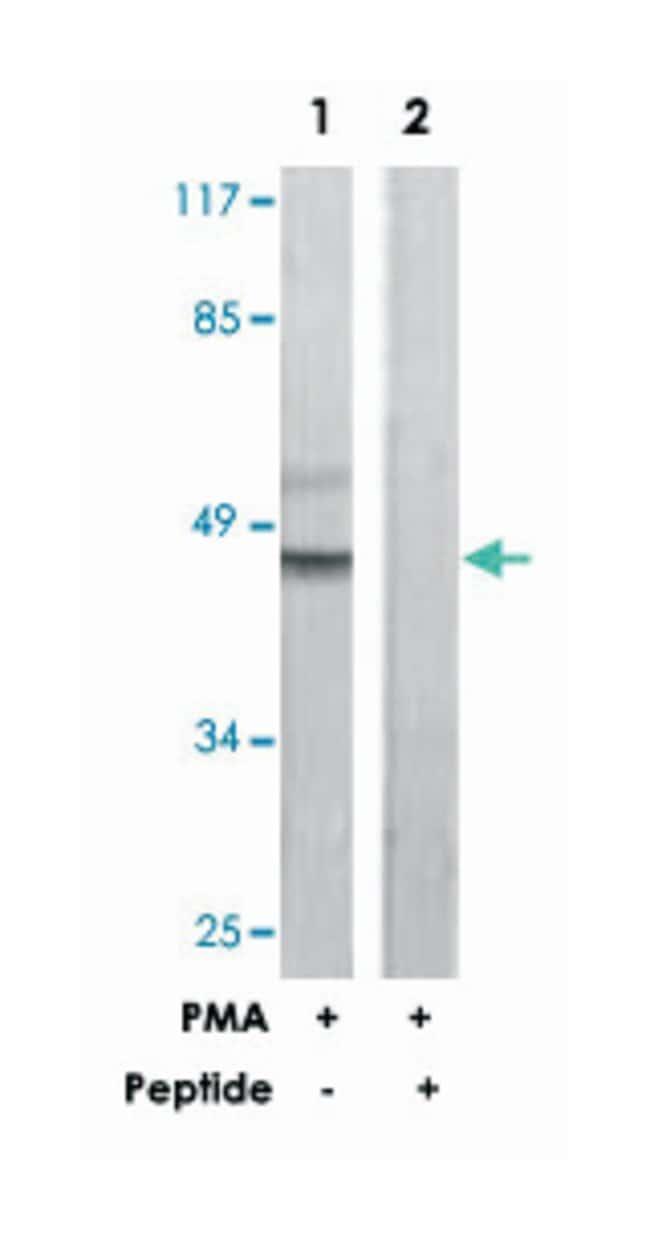 C5AR1 Rabbit anti-Human, Polyclonal Antibody, Abnova 100µg; Unlabeled:Life