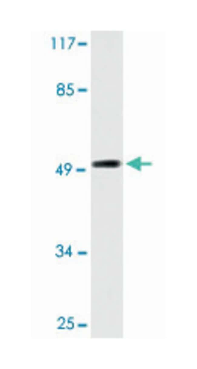 RAD51C, Rabbit, Polyclonal Antibody, Abnova 100µL; Unlabeled:Life