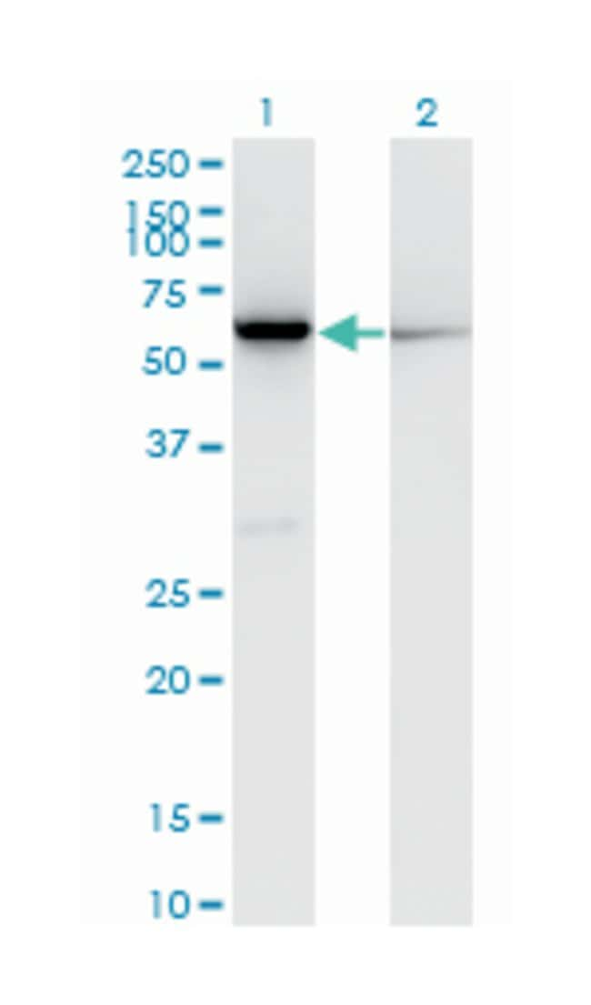 CBS, Mouse, Clone: 3D10, Abnova 100μg; Unlabeled:Antibodies