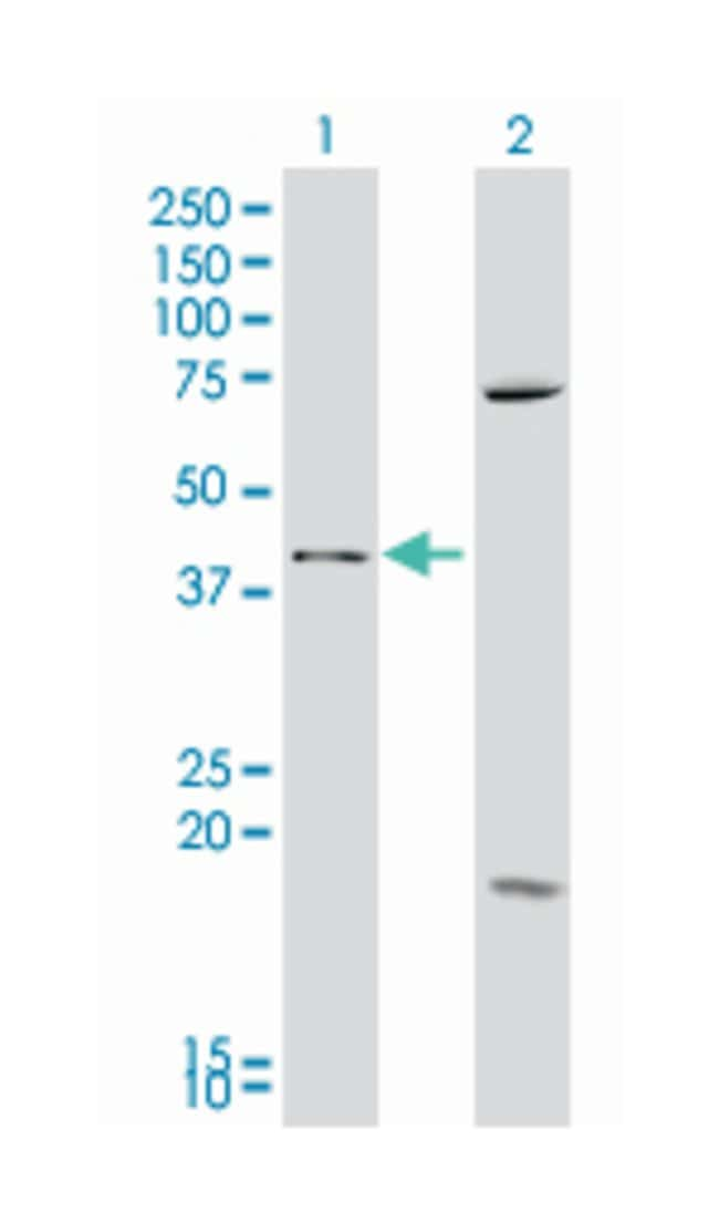 secreted frizzled-related protein 4, Mouse, Polyclonal Antibody, Abnova