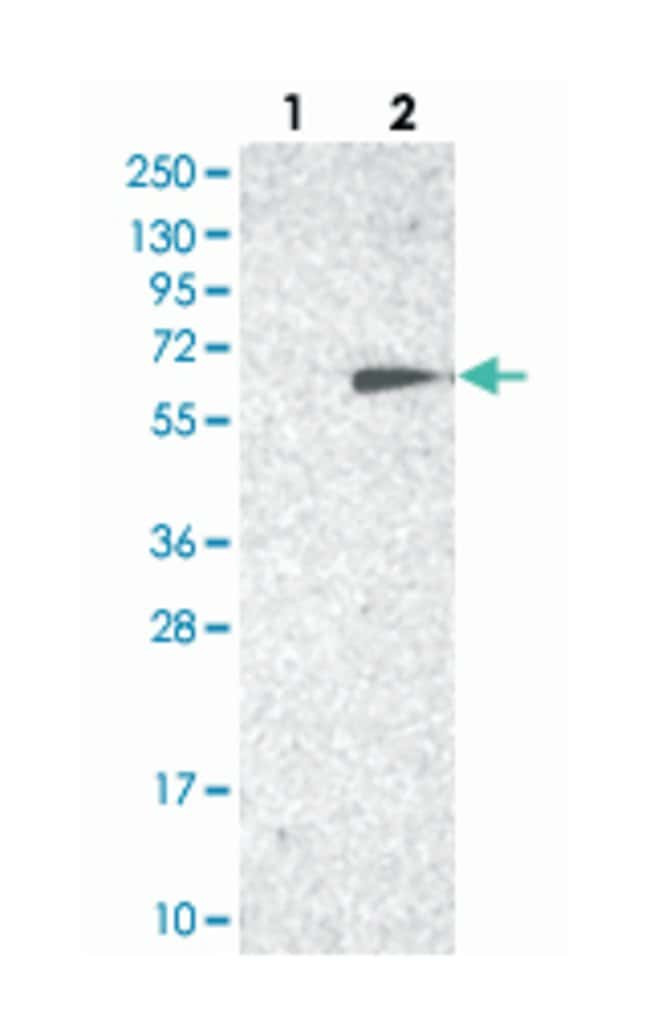 TC2N, Rabbit, Polyclonal Antibody, Abnova 100µL; Unlabeled:Life Sciences