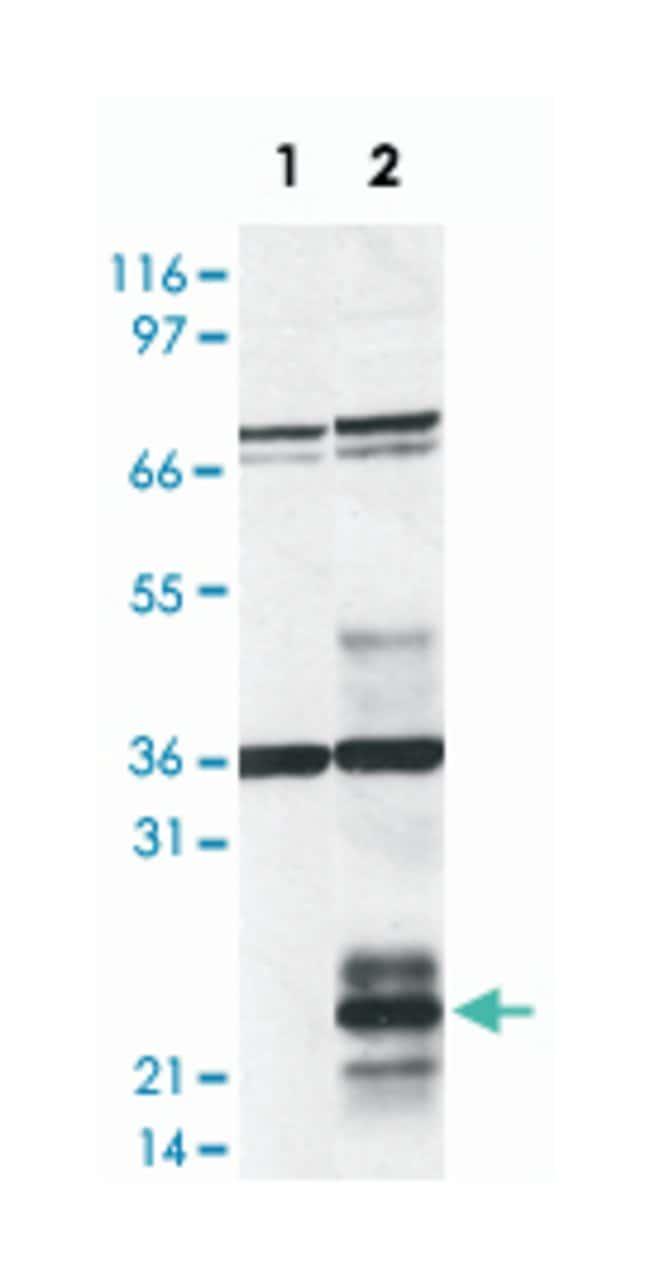HDLBP Rabbit anti-Human, Polyclonal Antibody, Abnova 100µL; Unlabeled:Life