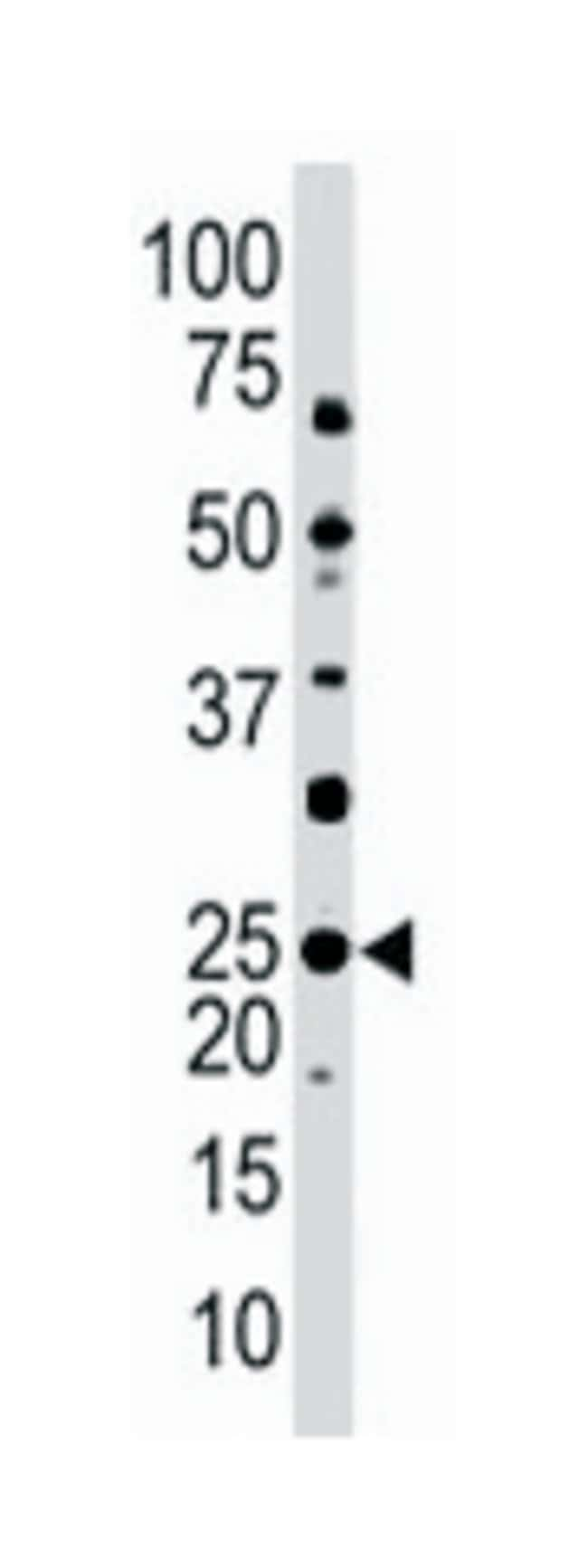 UBE2E3 Rabbit anti-Human, Mouse, Polyclonal Antibody, Abnova 400µL;