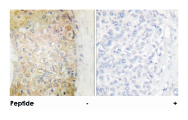 HSPB6, Rabbit, Polyclonal Antibody, Abnova 100µg; Unlabeled:Life Sciences