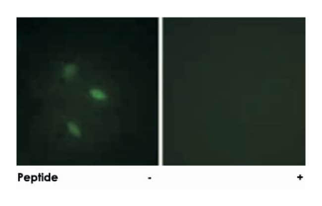 CCNE2 Rabbit anti-Human, Mouse, Polyclonal Antibody, Abnova 100µg;