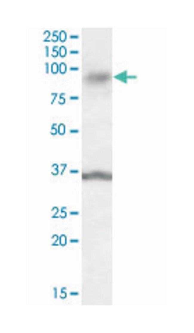 ANKK1, Goat, Polyclonal Antibody, Abnova 100µg; Unlabeled:Life Sciences