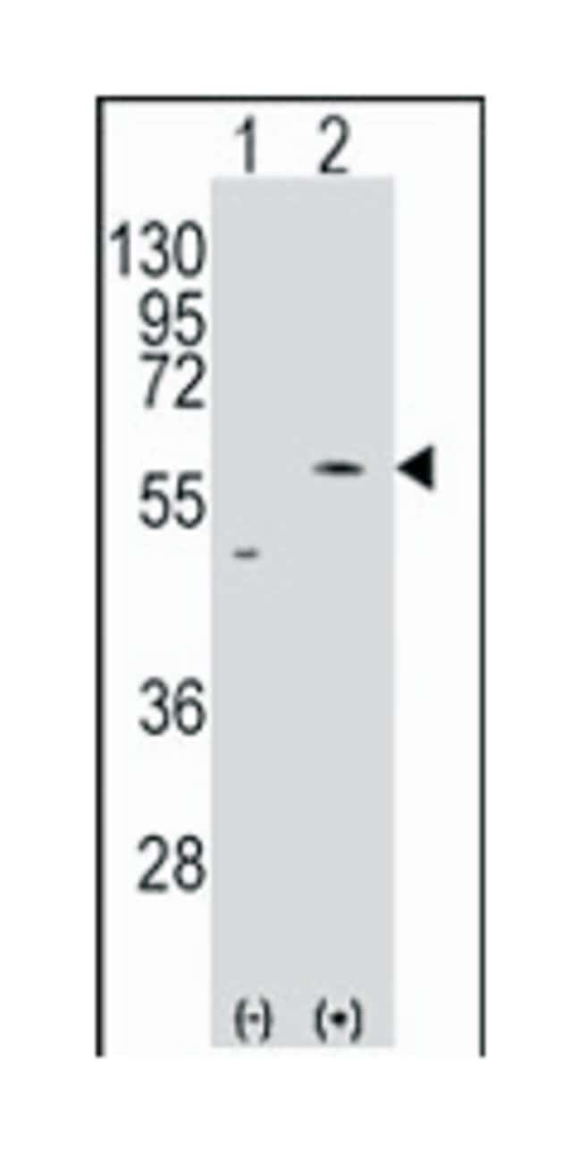 SLC29A4, Rabbit, Polyclonal Antibody, Abnova 400µL; Unlabeled:Life