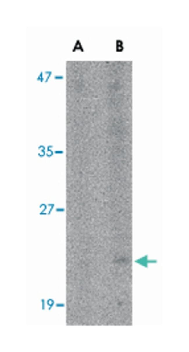 BST2, Rabbit, Polyclonal Antibody, Abnova 100µg; Unlabeled:Life Sciences