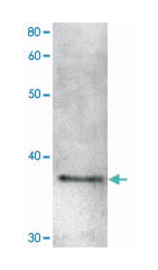 Sgo1, Rabbit, Polyclonal Antibody, Abnova 100µL; Unlabeled:Life Sciences