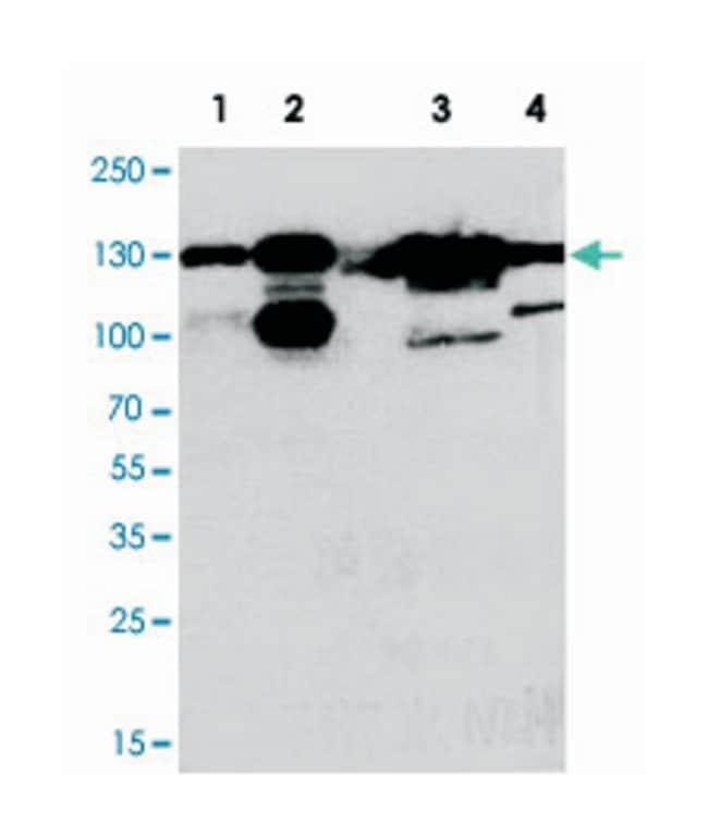 THBS2, Rabbit, Polyclonal Antibody, Abnova 100µg; Unlabeled:Life Sciences