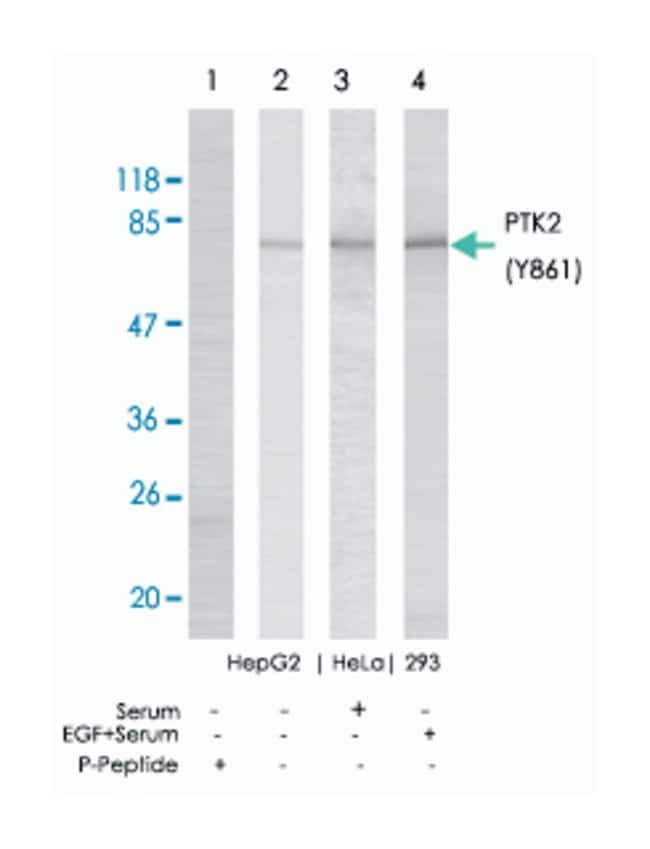 PTK2 (phospho Y861), Rabbit anti-Human, Mouse, Rat, Polyclonal Antibody,