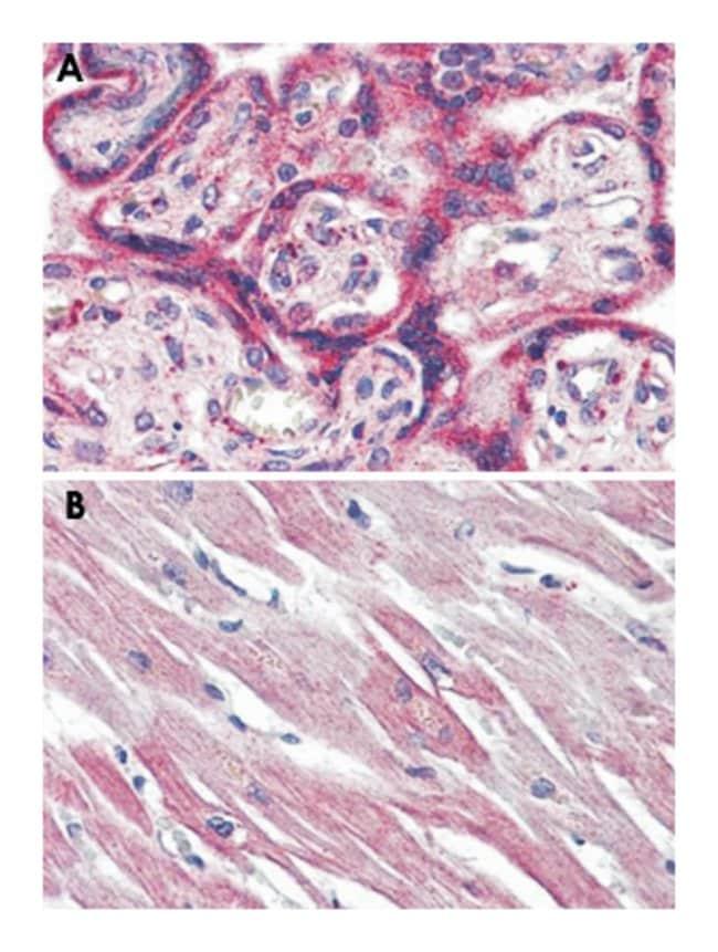 EPHX2 Rabbit anti-Human, Monkey, Polyclonal Antibody, Abnova 50µg;