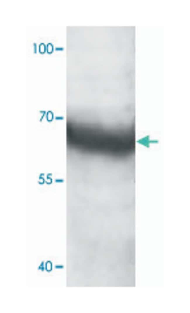 AKAP10, Rabbit, Polyclonal Antibody, Abnova™ 100μg; Unlabeled Primary Antibodies Ad to Ak