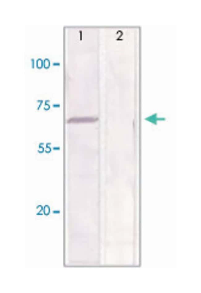 ESR1 (phospho S167), Rabbit anti-Human, Polyclonal Antibody, Abnova 100µg;