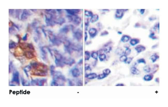 RPS6KA5 Rabbit anti-Human, Mouse, Polyclonal Antibody, Abnova 100µg;