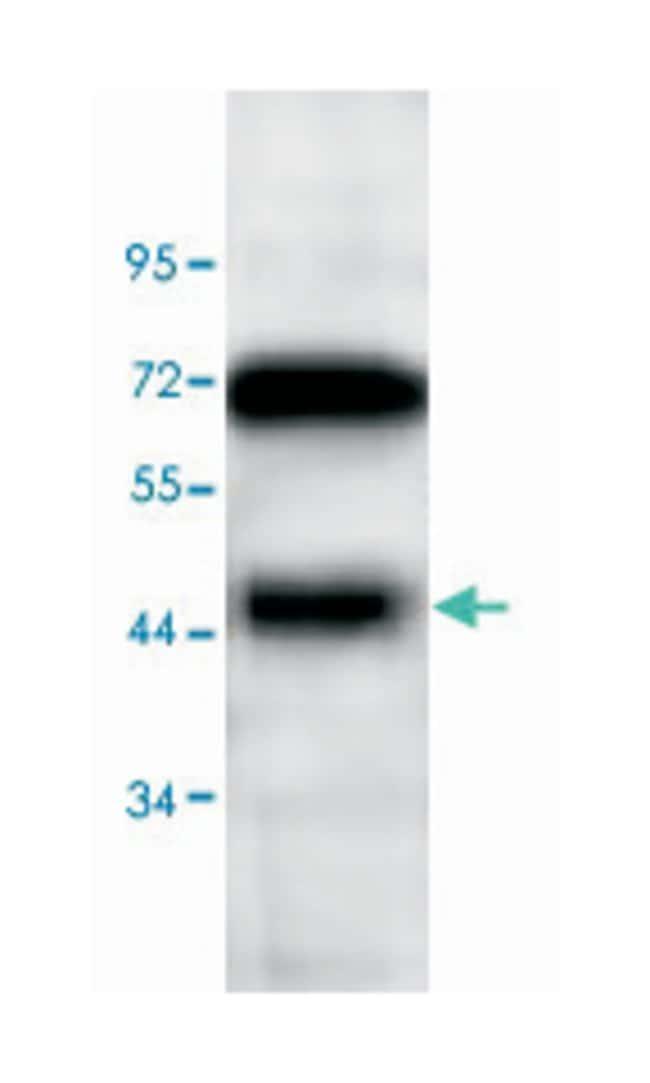 SMARCB1, Rabbit, Polyclonal Antibody, Abnova 100µg; Unlabeled:Life