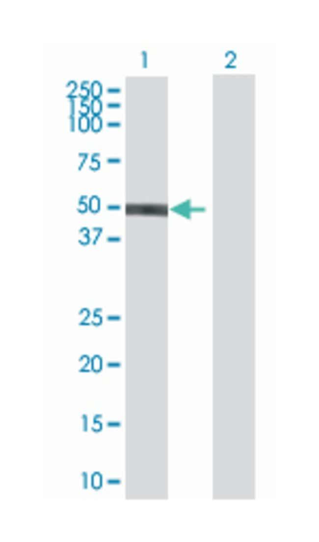 zinc finger protein 71, Mouse, Polyclonal Antibody, Abnova 50µL; Unlabeled